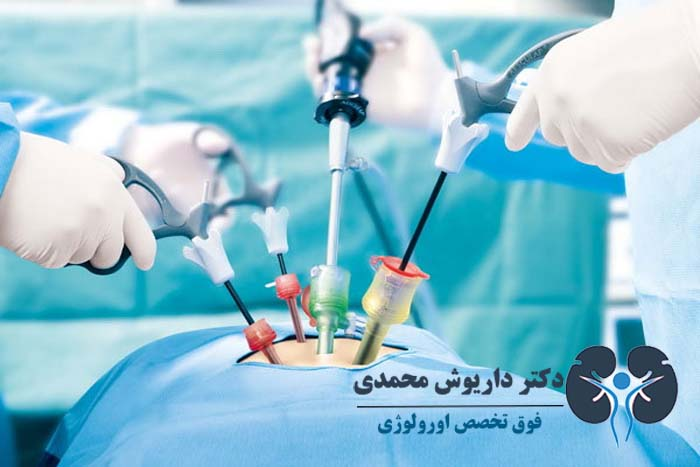 جراحی لاپاروسکوپی