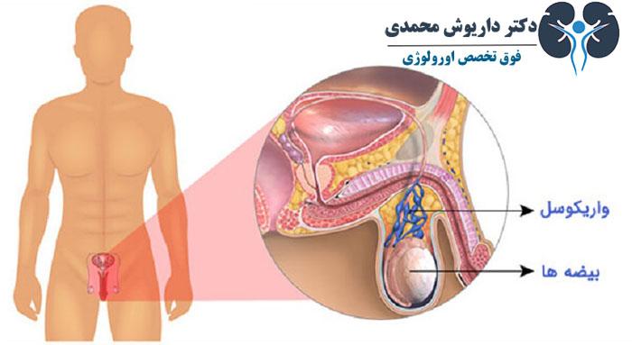 مزایای جراحی میکروسرجری واریکوسل