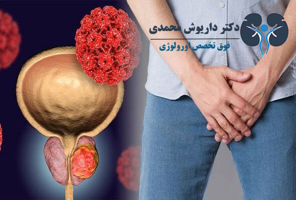 تشخیص زودهنگام پروستات