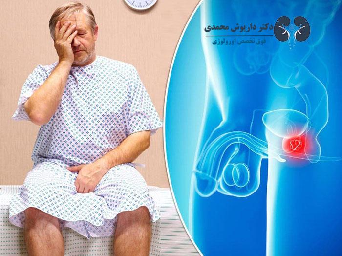 شیوع سرطان پروستات