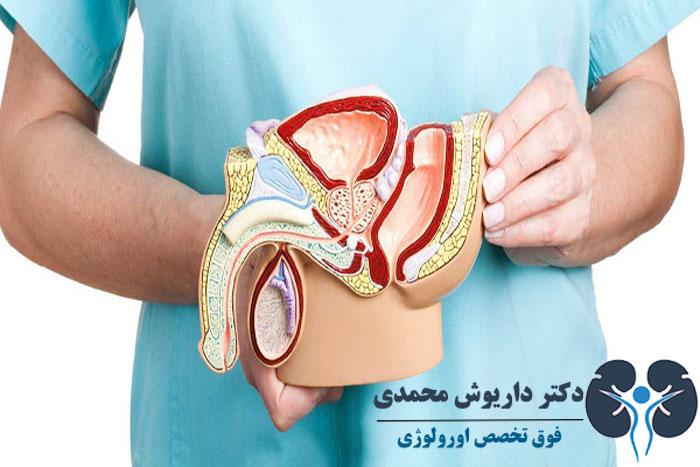 عوارض جراحی پروستات