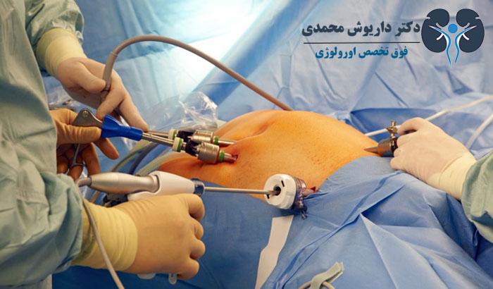 جراحی پروستات بدون برش