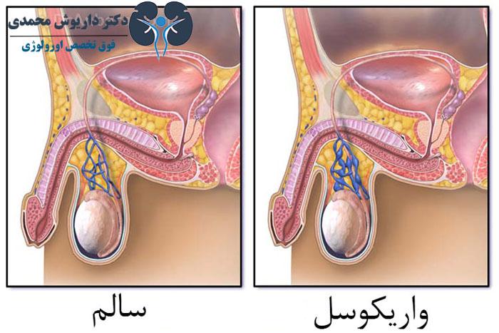فرایند انجام جراحی میکروسکوپی واریکوسل
