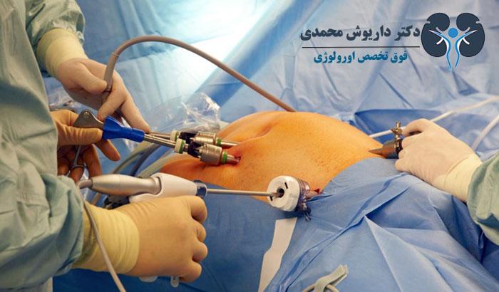 جراحی های اورولوژی مردان