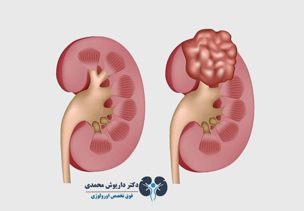 عفونت کلیه و کرونا