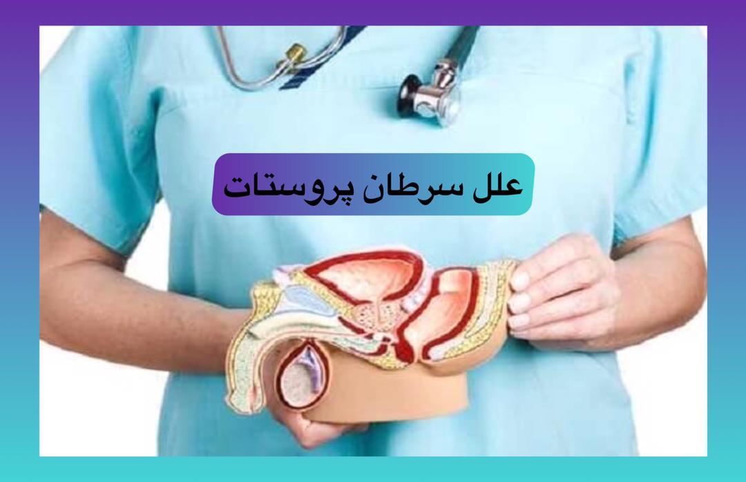 علت سرطان پروستات